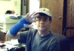 broken wrist-again